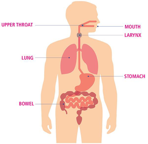 : Mouth, Upper throat, Larynx, Lung, Stomach, Bowel